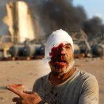 78 maut, ribuan cedera dalam letupan besar di Beirut